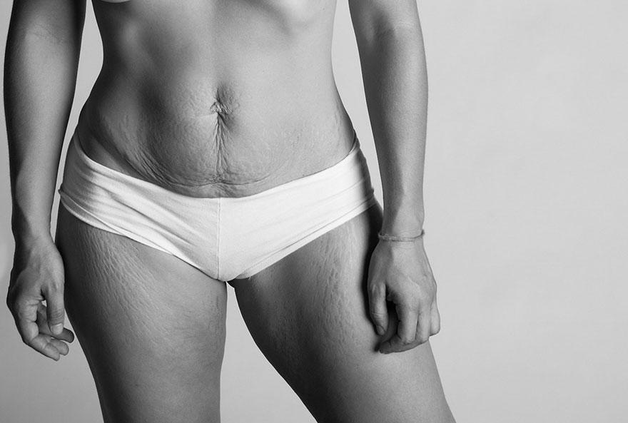 Cuerpo postparto con diástasis abdominal. Fotografía de Jade Beall http://www.abeautifulbodyproject.org/